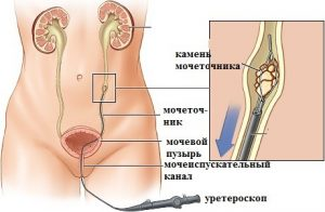 Контактна уретеролітотрипсія
